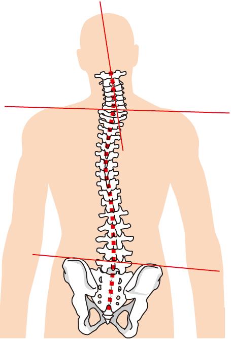 四十肩・五十肩の原因は体の歪みです。