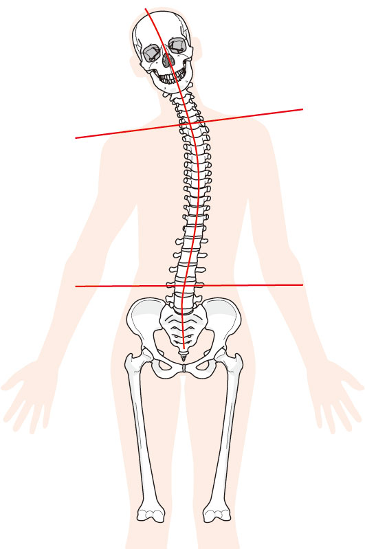 足がつる原因は体の歪みです。