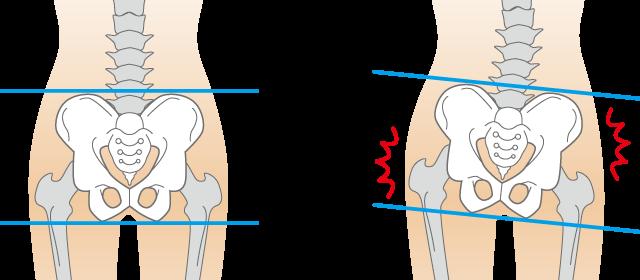 当院の肋間神経痛へのアプローチとは